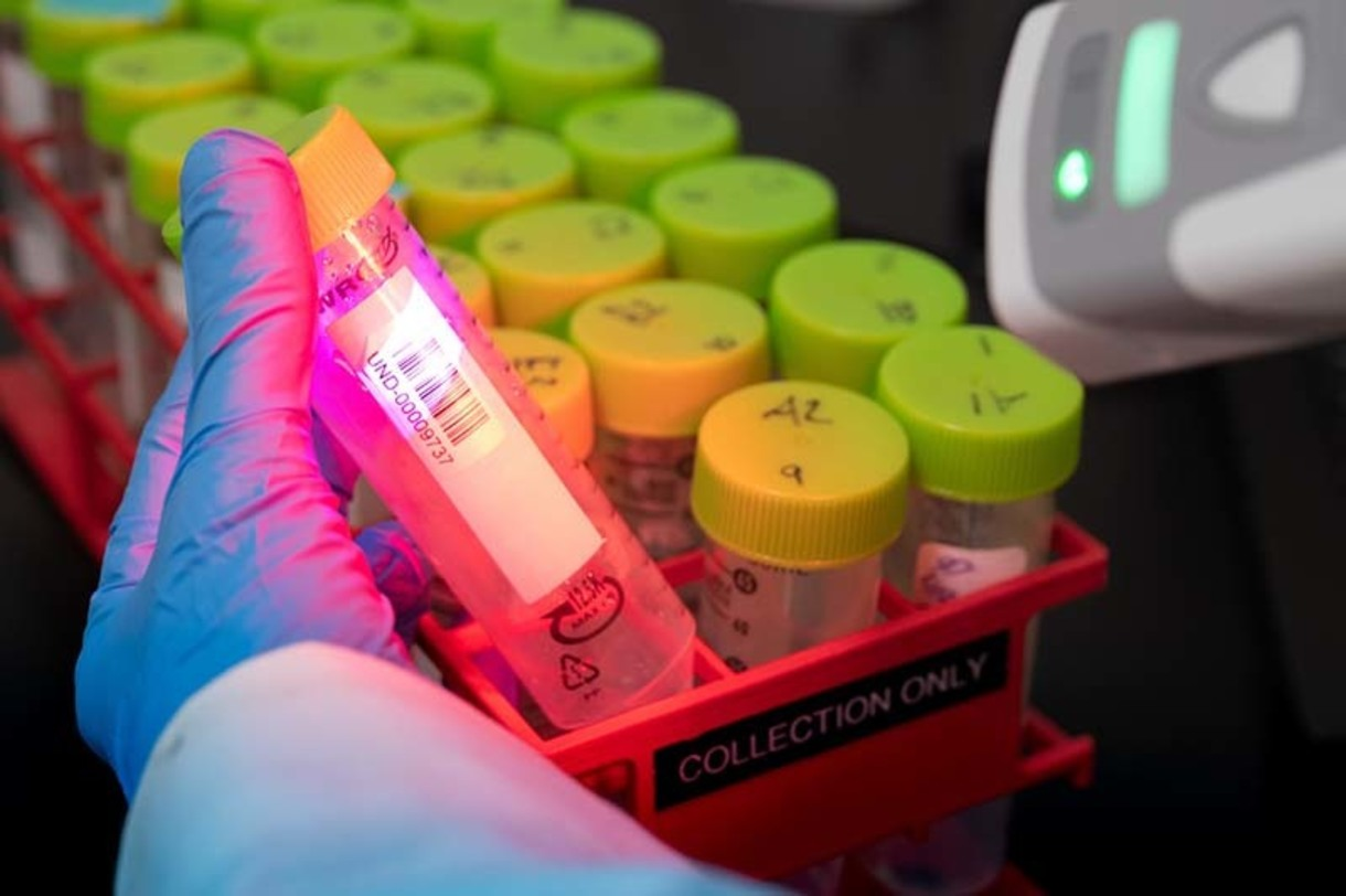 Lab technician scans bar code on test tube